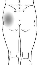 股OAの痛み部位_後面.jpg