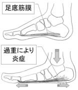 扁平足と足底筋膜炎.JPG